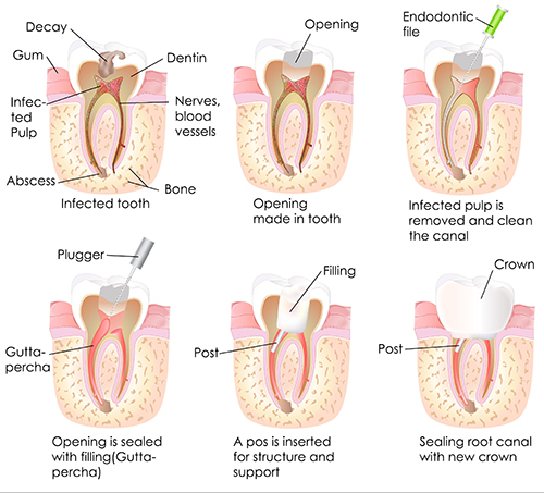 Root Canal Therapy near Englewood Cliffs