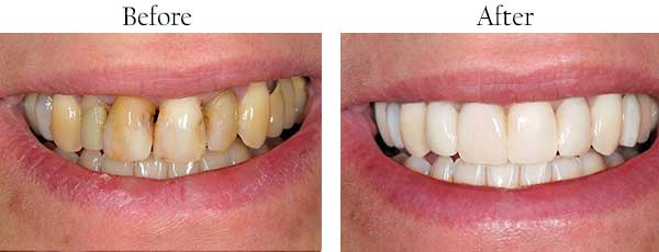 Before and After Teeth Whitening Englewood