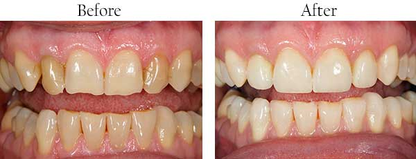 Englewood Before and After Dental Images