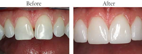 Before and After Dental Fillings Englewood Cliffs